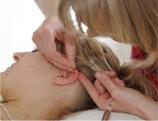 Auriculoterapi i øret